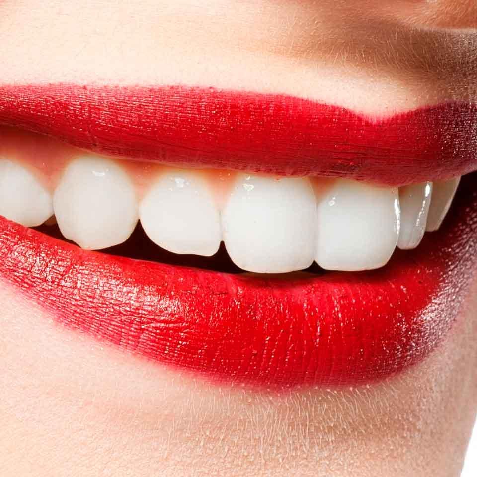 blanqueamiento-dental2-www.clinicamasbermejo.com